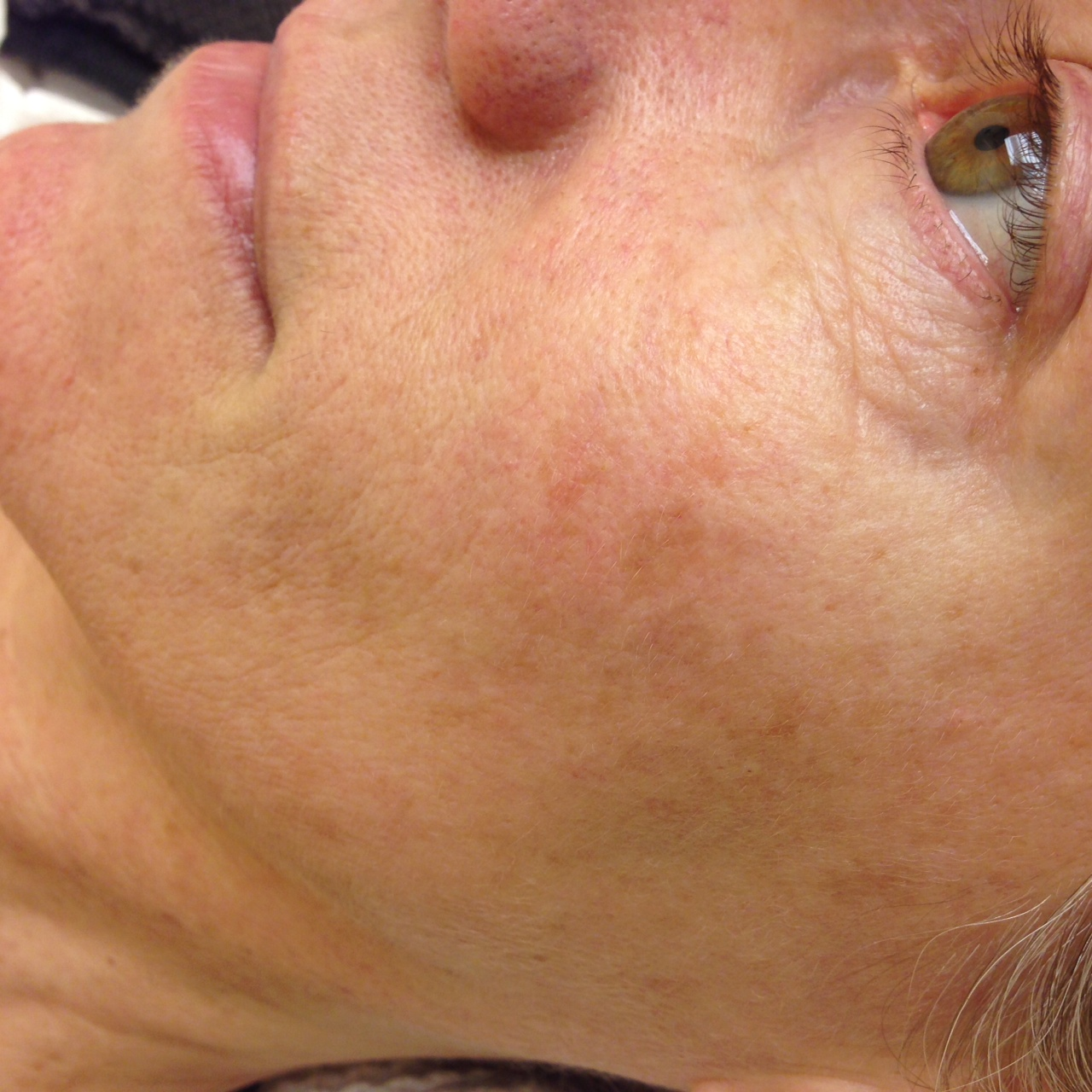 Rosacea+On+Neck+And+Chest Rosacea On Chest And Neck Ipl photofacial ...